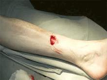 открытый-перелом-кости-ноги