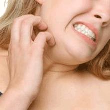 сильный кожный зуд