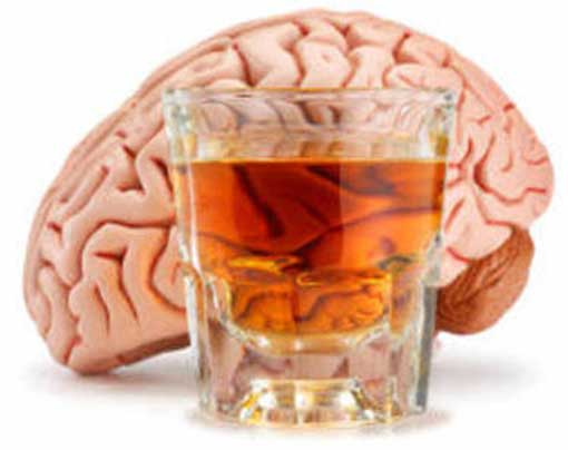 the_brain_of_an_alcoholic