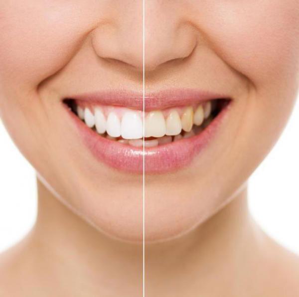 зубы морской солью