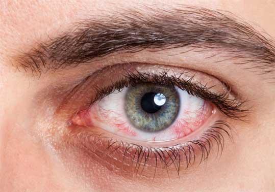 глаза сухие после
